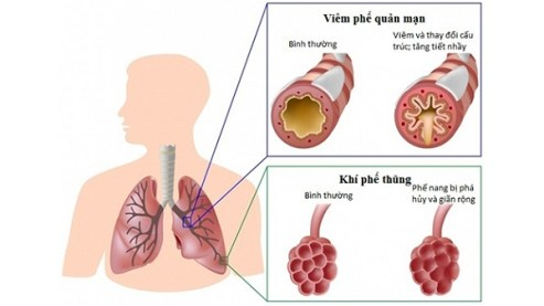 COPD NGUY HIỂM NHƯ THẾ NÀO ? | |